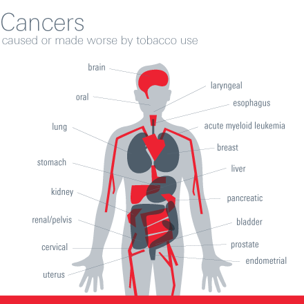 Cancers caused or made worse by tobacco use.