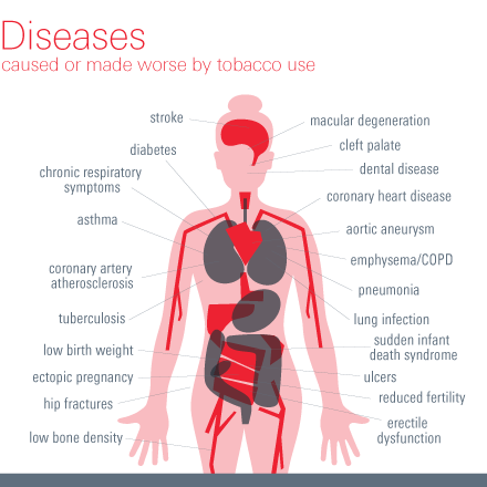 Diseases caused or made worse by tobacco use.